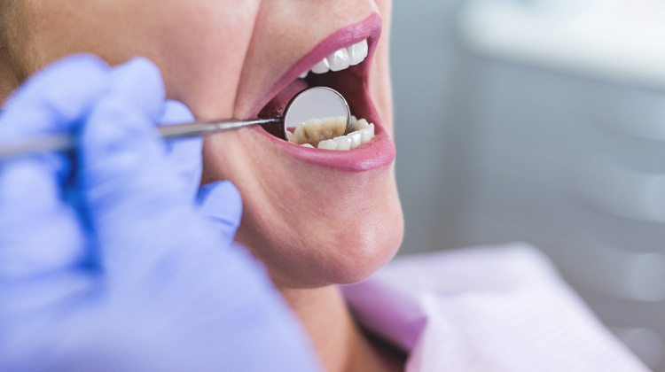 Dental Health is your Overall Health!